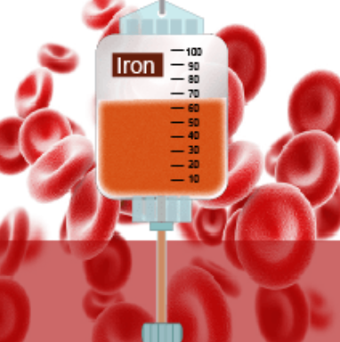 How will I feel after an iron infusion? There are very little side effects with intravenous iron infusions.